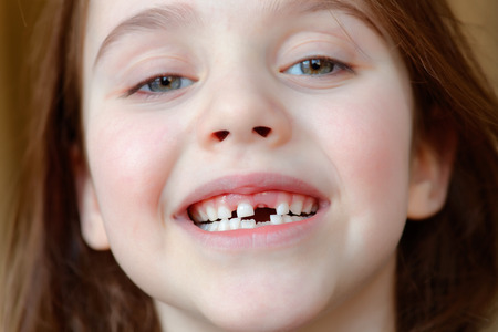 Foto de The adorable girl smiles with the fall of the first baby teeth - Imagen libre de derechos