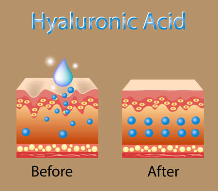 Illustration pour Vector illustration with process of getting skin younger with help of hyaluronic acid - image libre de droit