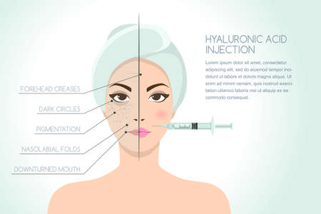 Illustration pour Before and after vector illustration of woman having hyaluronic acid facial injection. Vector infographics design template. Beauty, cosmetology, anti-aging concept. - image libre de droit