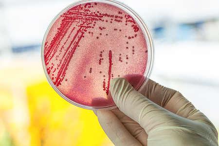 Foto de Petri dish with red bacteria, lab work - Imagen libre de derechos