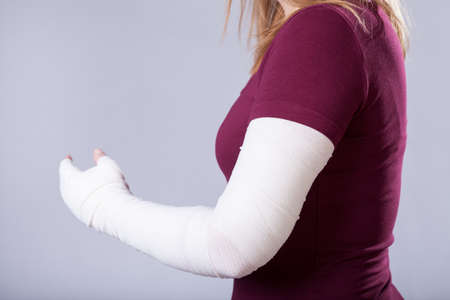 Foto de Closeup of young girl with broken arm - Imagen libre de derechos