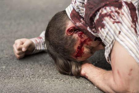 Foto de Horizontal view of casualty of terrorist attack - Imagen libre de derechos