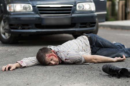 Photo for Man hit by a car is lying unconscious - Royalty Free Image