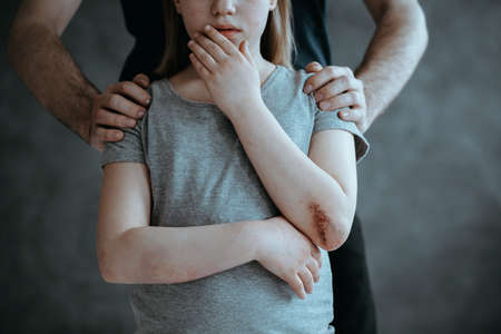 Photo pour Father standing behind crying young girl with hurt elbow - image libre de droit