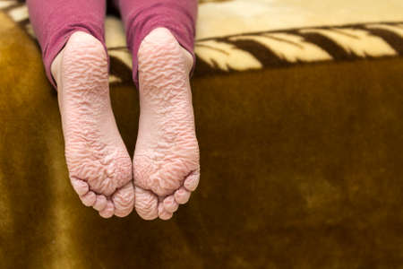 Photo pour Close-up of children wrinkled feet after long bath - image libre de droit