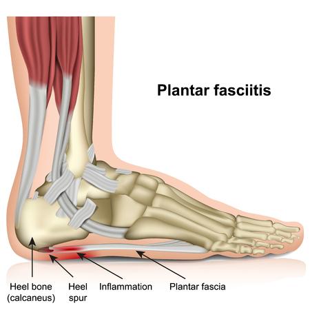 Ilustración de Plantar fasciitis 3d medical vector illustration on white background - Imagen libre de derechos