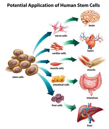 Ilustración de Explanation of stem cell application - Imagen libre de derechos