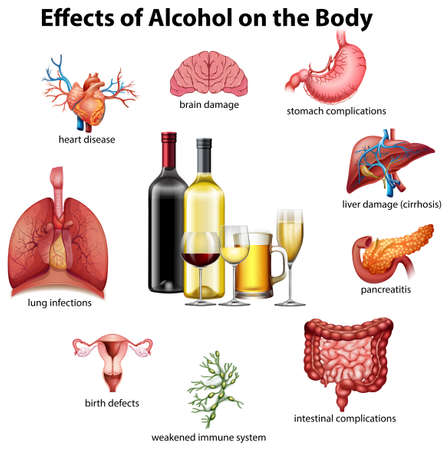 Ilustración de Effects of alcohol on the body illustration - Imagen libre de derechos