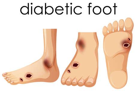 Ilustración de Human Foot with Diabetic  illustration - Imagen libre de derechos