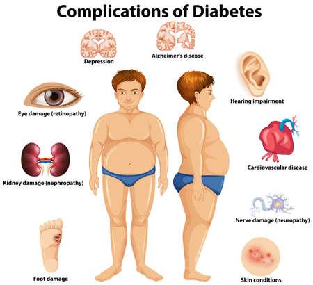 Ilustración de Complications of Diabetes concept illustration - Imagen libre de derechos