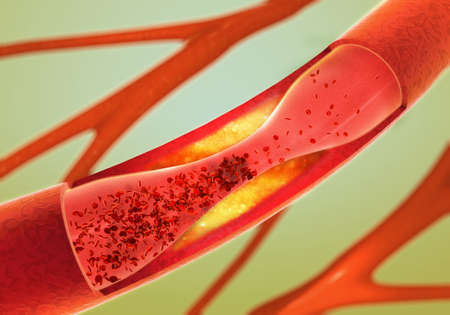Foto per Precipitate and narrowing of the blood vessels - arteriosclerosis - Immagine Royalty Free