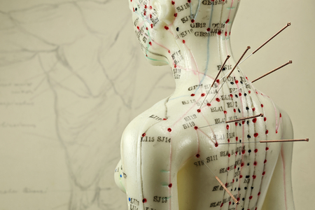 Foto de female acupuncture model with needles in the shoulder - Imagen libre de derechos