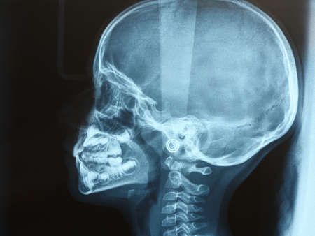Foto per xray of the head of a child or kid side view - Immagine Royalty Free