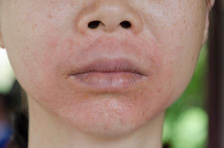 Foto de Human skin, presenting an allergic reaction, allergic rash. - Imagen libre de derechos