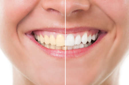 Photo pour Perfect woman smile before and after whitening. Dental care and periodic exam concept - image libre de droit