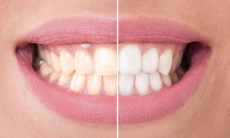 Photo pour Perfect smile before and after bleaching. Dental care and whitening concept - image libre de droit