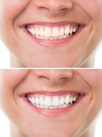 Foto de Before and after bleaching or whitening. Perfect woman mouth with teeth smile - Imagen libre de derechos