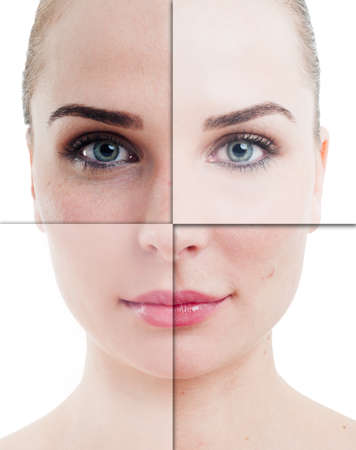 Woman face divided in parts with perfect and imperfect skin on isolated on white