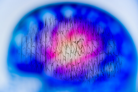 Photo for EEG with electrical activity of abnormal brain, electroencephalogram,EEG - Royalty Free Image