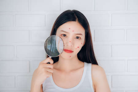 Photo pour Young Asian woman holding Magnifying glass check acne her face problem. - image libre de droit