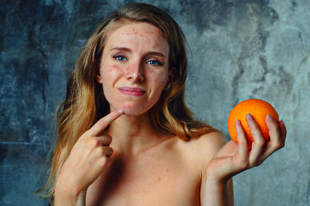 Foto de Young woman have allergy on orange. Face have a lot of acne and she is very unhappy. - Imagen libre de derechos