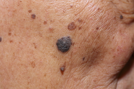 Photo for close up of suspicious mole on skin - Royalty Free Image