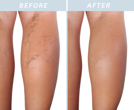 Photo pour Treatment of varicose before and after. Varicose veins on the legs. - image libre de droit