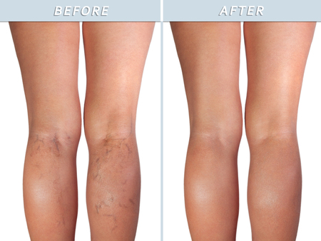 Photo pour Female healthy leg and the affected varicose veins, isolated on white - image libre de droit