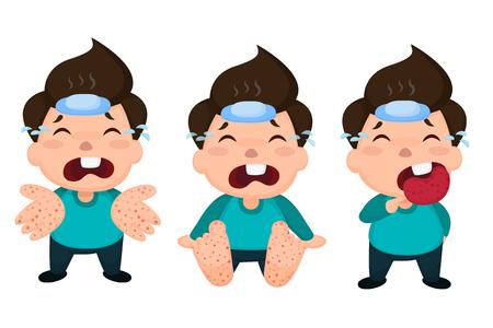 Ilustración de Hand foot and mouth disease (HFMD) children infected. Vector Illustration on white background. - Imagen libre de derechos