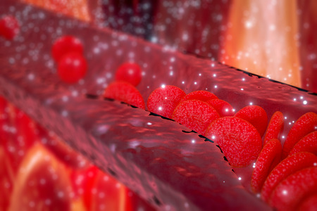 Photo for Cholesterol plaque in artery, Blood vessel with flowing blood cells, 3d rendering - Royalty Free Image