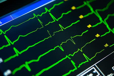 Foto de cardiogram close-up on a cardiograph monitor - Imagen libre de derechos
