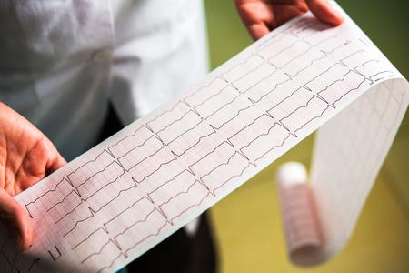 Foto de cardiogram close-up in doctors hands - Imagen libre de derechos