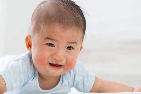 Photo pour Skin rashes in babies concept - image libre de droit