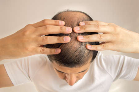 Foto de close up of man controls hair loss - Imagen libre de derechos