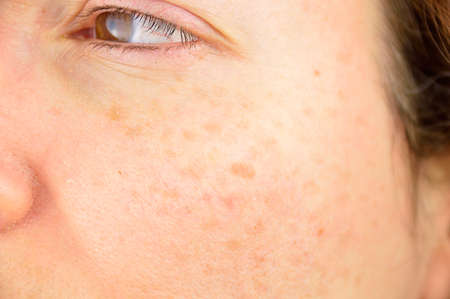 Photo for closeup of a woman cheek with liver spot causes by the large exposition sun  - Royalty Free Image