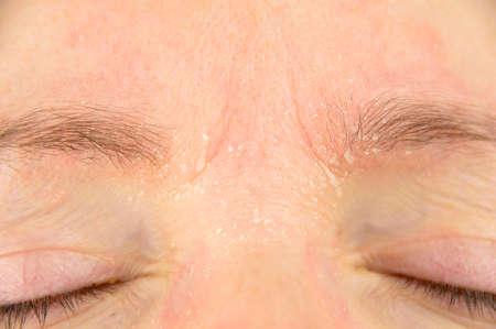 Foto de woman with symptom of atopic dermatitis on brow and brows - Imagen libre de derechos