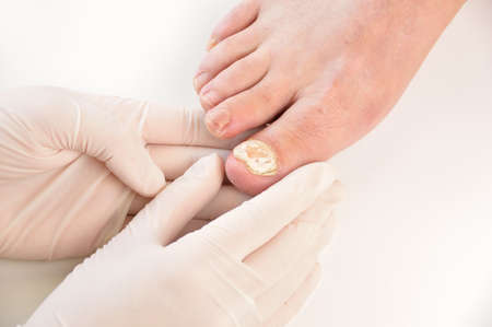 Foto de Closeup image of podologist checking the left foot toe nail suffering from fungus infection. horizontal studio picture on white background. - Imagen libre de derechos