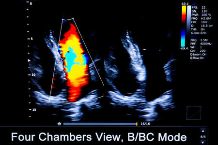 Foto de Colourful image of modern ultrasound monitor. Ultrasonography machine. High technology medical and healthcare equipment. Ultrasound imaging or sonography used in medicine. Human heart. Four Chambers view. - Imagen libre de derechos