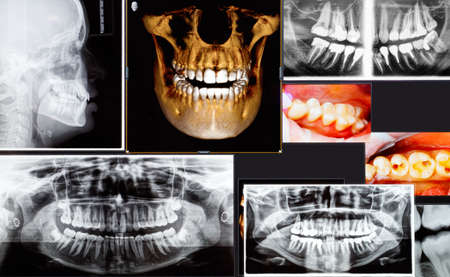 Photo pour Panoramic and 3D dental x-ray many shots - image libre de droit