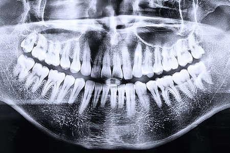 Photo pour Panoramic dental x-ray  - image libre de droit