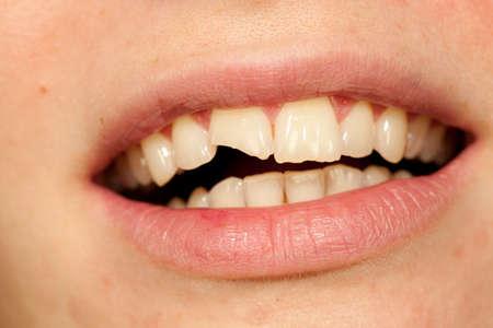 Foto de woman with beautiful mouths and broken tooth - Imagen libre de derechos