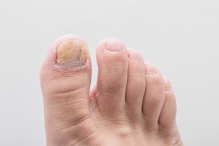 Foto de Close-up foot of nail fungus - Imagen libre de derechos