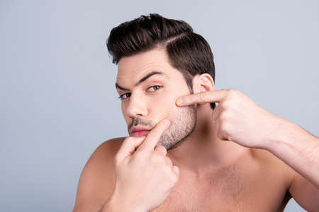 Foto de Perfection is a hard work even for men! Aging wrinkles oily dry skin concept. Close up photo of worried guy touching his cheek with fingers, trying to squeeze out a pimple - Imagen libre de derechos