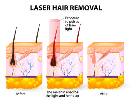 Illustration for The laser emits an invisible light which penetrates the skin without damaging it - Royalty Free Image
