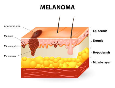 Illustrazione per Melanoma or skin cancer. This rare type of skin cancer originates from melanocytes. layers of the human skin. - Immagini Royalty Free