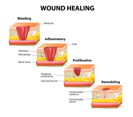 Illustrazione per Phases of the wound healing process. Hemostasis, Inflammatory, Proliferative, Maturation and remodeling phase - Immagini Royalty Free