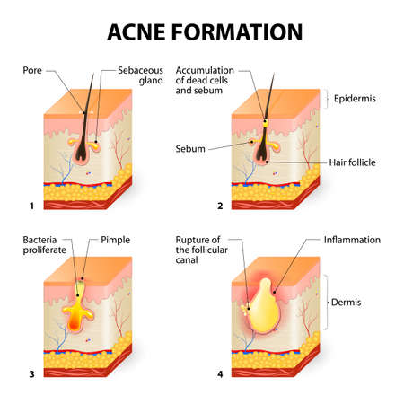 Illustrazione per Formation of skin acne or pimple. The sebum in the clogged pore promotes the growth of a certain bacteria called Propionibacterium Acnes. This leads to the redness and inflammation associated with pimples. - Immagini Royalty Free