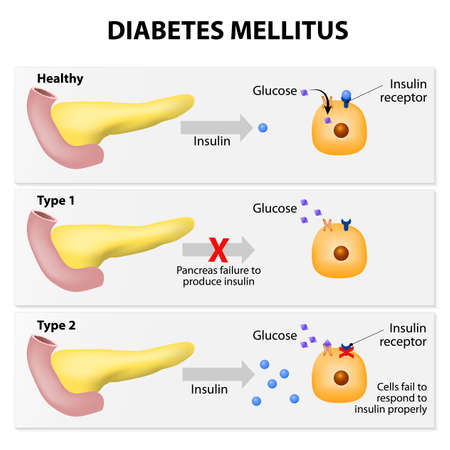 Illustration for Main types of diabetes mellitus. Either the pancreas not producing enough insulin or the cells of the body not responding properly to the insulin produced - Royalty Free Image