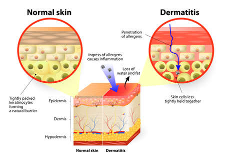 Illustrazione per Skin showing changes due to dermatitis. labeled - Immagini Royalty Free