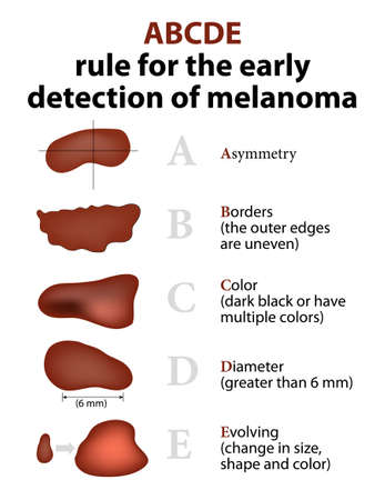 Illustrazione per ABCDE Rule for the early detection of Melanoma - Immagini Royalty Free
